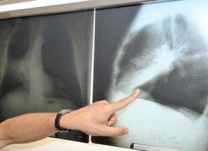 лечение рака в Германии